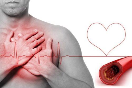 Homem com a mão no peito nao se sente bem por causa do colesterol