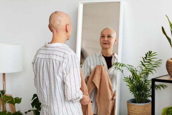 Mulher com queda de cabelo severa